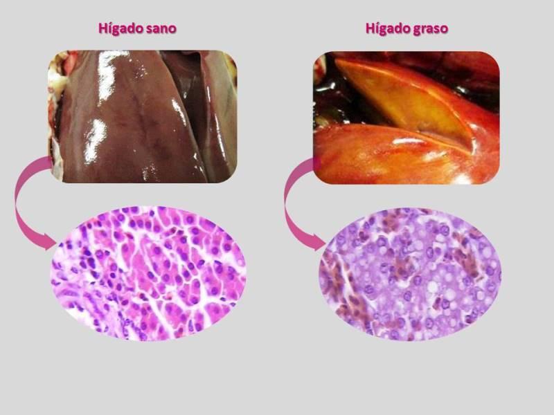 Síndrome del hígado graso, SHG en gallinas de postura | www.tecnovit.net